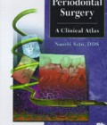 Periodontal Surgery: A Clinical Atlas