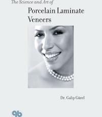 The Science and Art of Porcelain Laminate Veneers