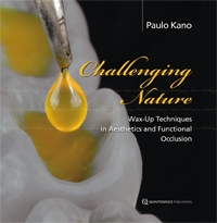 Challenging Nature: Wax-Up Technique in Aesthetics and Functional Occlusion