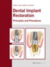 Dental Implant Restoration: Principles and Procedures