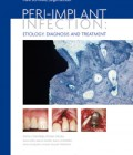 Peri-Implant Infection: Etiology, Diagnosis and Treatment