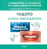 Чудото зъбни имплатни