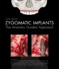 Zygomatic Implants: The Anatomy Guided Approach