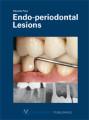 endo-periodontal-lesions