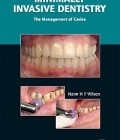 Minimally Invasive Dentistry: The Management of Caries