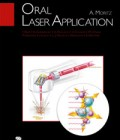 Oral Laser Application