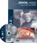 Dental Video Journal DVD 3/2012
