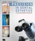 Precision in Dental Esthetics