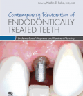 Contemporary Restoration of Endodontically Treated Teeth