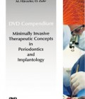 Minimally Invasive Treatment Concepts in Periodontics and Implant Dentistry DVD