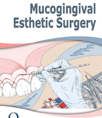 Mucogingival Esthetic Surgery