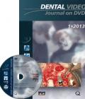 Dental Video Journal DVD 1/2013