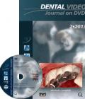Dental Video Journal DVD 2/2013