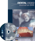 Dental Video Journal DVD 3/2013