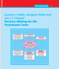 Decision-Making for the Periodontal Team