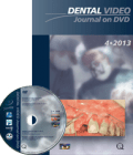 Dental Video Journal DVD 4/2013