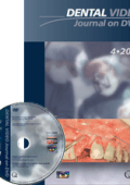 Dental Video Journal DVD 4/2013