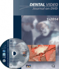 Dental Video Journal 1/2014