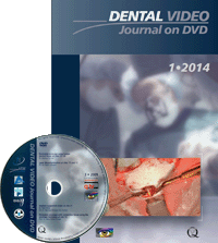 Dental Video Journal 1/2014