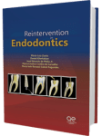 Reintervention in endodontics 2014
