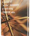 "A concept of ""en bloc"" movement of teeth using GUMMETAL wire"
