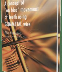 "A concept of ""en bloc"" movement of teeth using GUMMETAL wire"