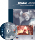 Dental Video Journal 1/2015
