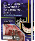 Esthetic Implant Restoration in the Edentulous Maxilla: A Simplified Protocol