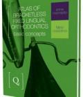 Atlas of Bracketless Fixed Lingual Orthodontics: Basic Concepts