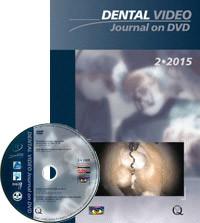 Dental Video Journal 2/2015