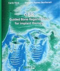 GBR Guided Bone Regeneration for implant therapy