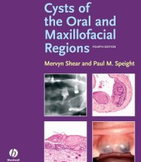Cysts of the Oral and Maxillofacial Regions