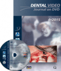 Dental Video Journal 4/2015
