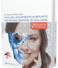 Occlusal Adjustments in Implants and Natural Dentition: 3D Occlusion