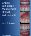 Esthetic Soft Tissue Management of Teeth and Implants