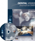 Dental Video Journal 2/2016