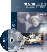 Dental Video Journal 2/2016