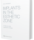 Implants in the Esthetic Zone: A Step-by-Step Treatment Strategy