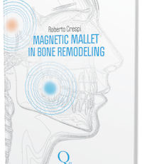 Magnetic mallet in bone remodeling