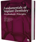 Fundamentals of Implant Dentistry Volume 1: Prosthodontic Principles