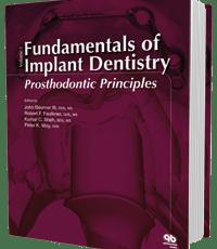 Fundamentals of Implant Dentistry Volume 1: Prosthodontic Principles