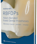 RBFDPs – Resin-Bonded Fixed Dental Prostheses