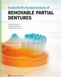removable-partial-dentures2019