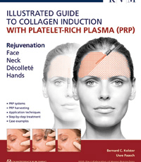 Illustrated Guide to Collagen Induction with Platelet-Rich Plasma (PRP)