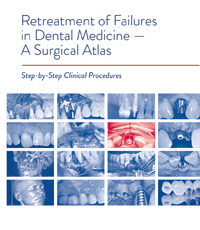 Retreatment of Failures in Dental Medicine – A Surgical Atlas