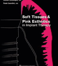 Soft Tissues and Pink Esthetics in Implant Therapy