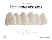 Laminate Veneers: 20 Recipes for Smile Design