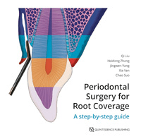 Periodontal Surgery for Root Coverage