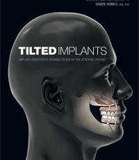 Tilted Implants: Implant-Prosthetic Rehabilitation of the Atrophic Patient