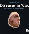Diseases in Wax